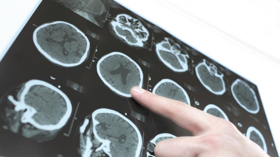 """Учени установиха """"срока на годност"""" на човешкия мозък"""