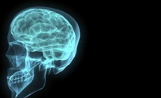 Пробив: Лечение срещу ранна фаза на Алцхаймер