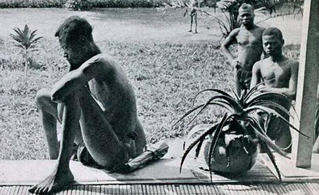 Нсла, който се взира в ръката и крака на дъщеря си., *снимката е изрязана, цялото изображение - на линка на източника
