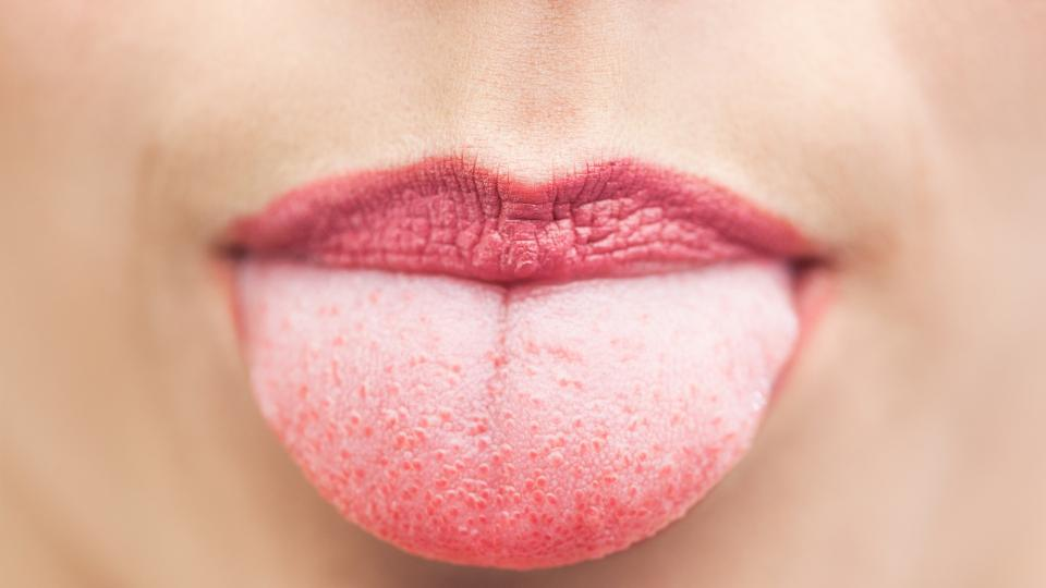 7 симптома на езика, по които можете да следите здравословното си състояние
