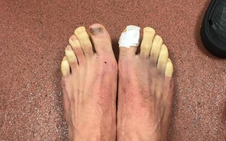 Какво се случи с краката на Адам Лалана?
