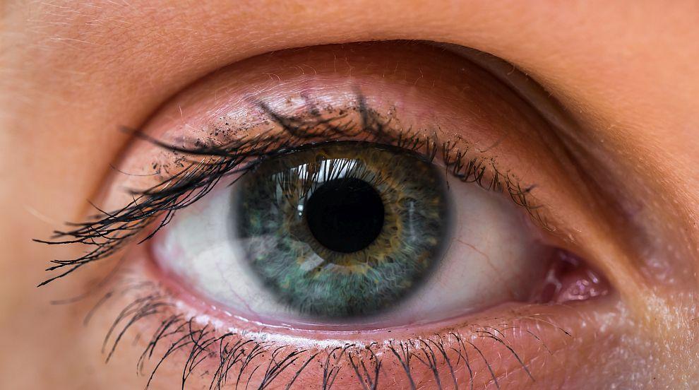 Хирурзи извадиха 14 червея от окото на жена