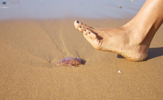 Опарването от медуза е неприятно.