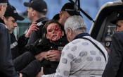 Левски осъди остро инцидента с поицайката, иска ясни факти