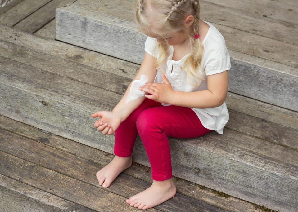 алергии деца