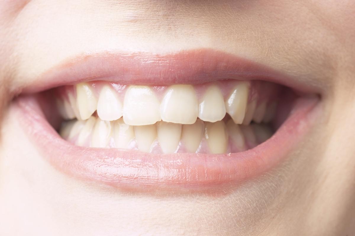 Както и върху зъбния емайл.