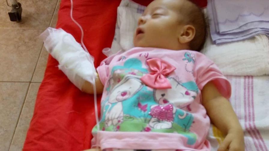 Бебе, родено без жлъчка, има нужда от спешна операция