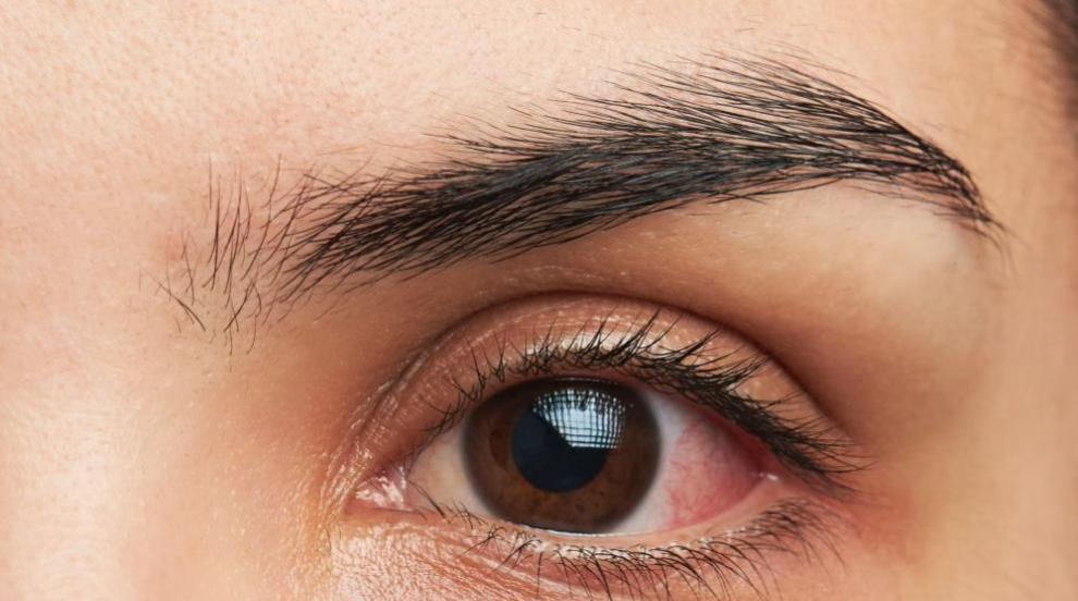 5 бабини лека срещу ечемик на окото (ВИДЕО)
