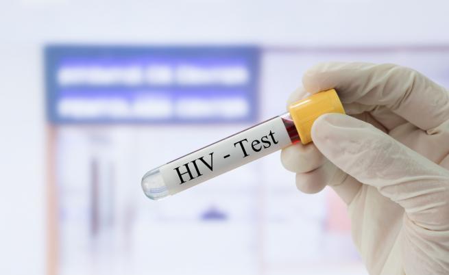 Нови случаи на зараза с вируса ХИВ в Източна Европа