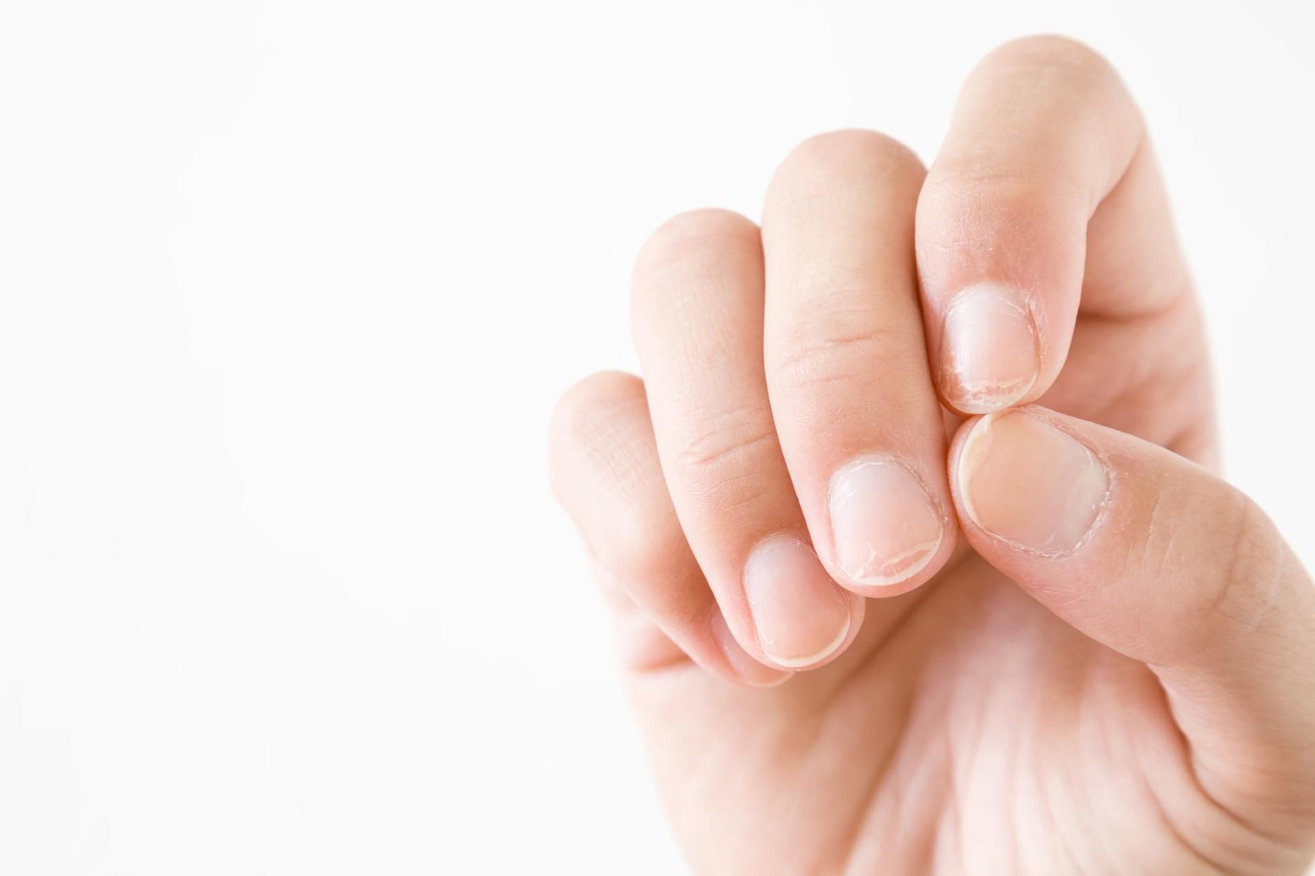 <p>Чупливи нокти</p>