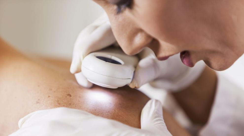 Два дни безплатни прегледи при дерматолози в София