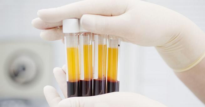 Университет в Източна Турция започна да използва кръвна плазма за