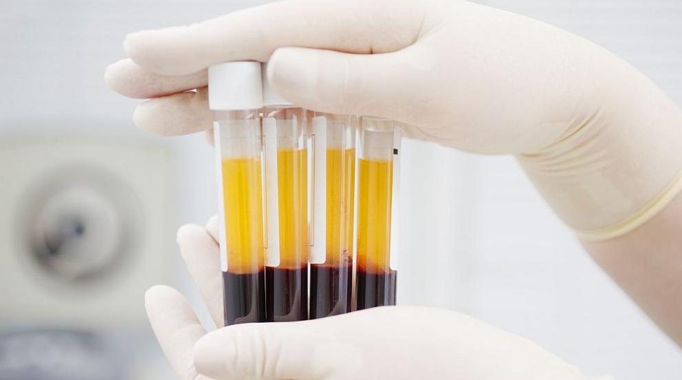Турция лекува пациенти с COVID-19, като им прелива кръвна...