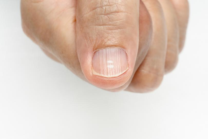 <p><strong>Набраздени нокти</strong></p>  <p>Браздите могат да бъдат вертикални или хоризонтални. Вертикалните могат да бъдат нормална промяна, освен ако не са свързани и с промяна на цвета &ndash; това може да е признак на желязодефицитна анемия. Хоризонталните могат да са показателни за бъбречно заболяване или лекарствена реакция.</p>
