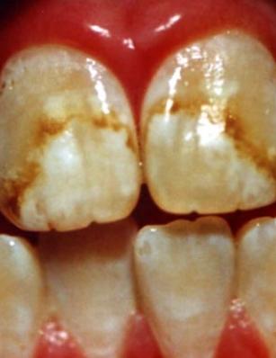Петна вследствие на флуороза (прекомерна употреба на флуорсъдържащи средства)