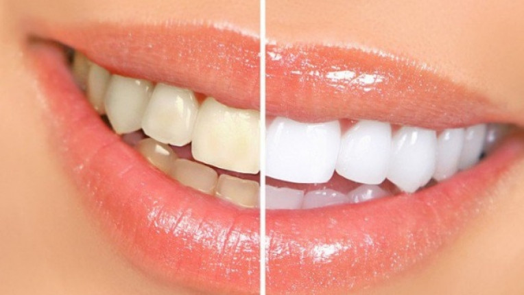избелване зъби усмивка зъболекар доктор Иван Башев емайл поддръжка гел