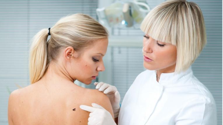 меланома бенка кожа дерматолог рак