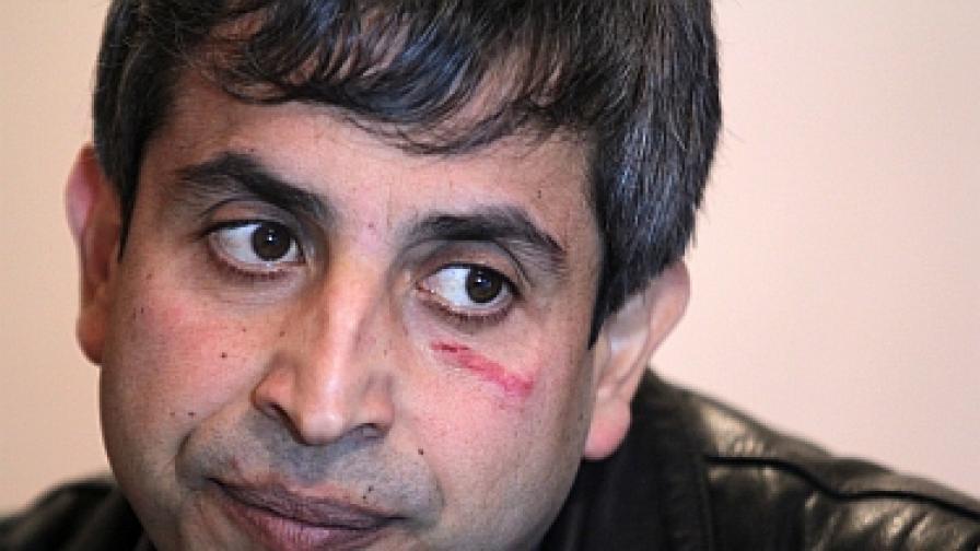 Скинари пребили ромски поет и журналист