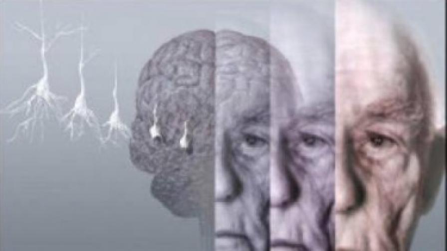 Здравото сърце предпазва от деменция