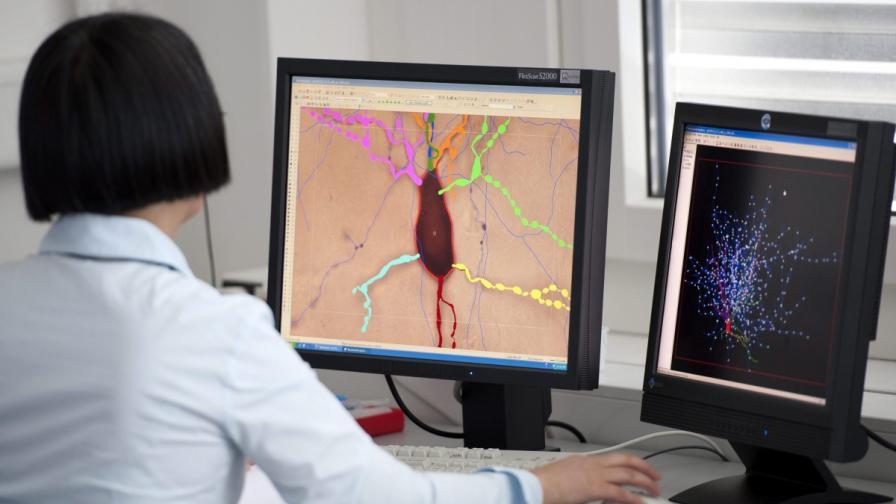 Откриха как да направят мозъка прозрачен
