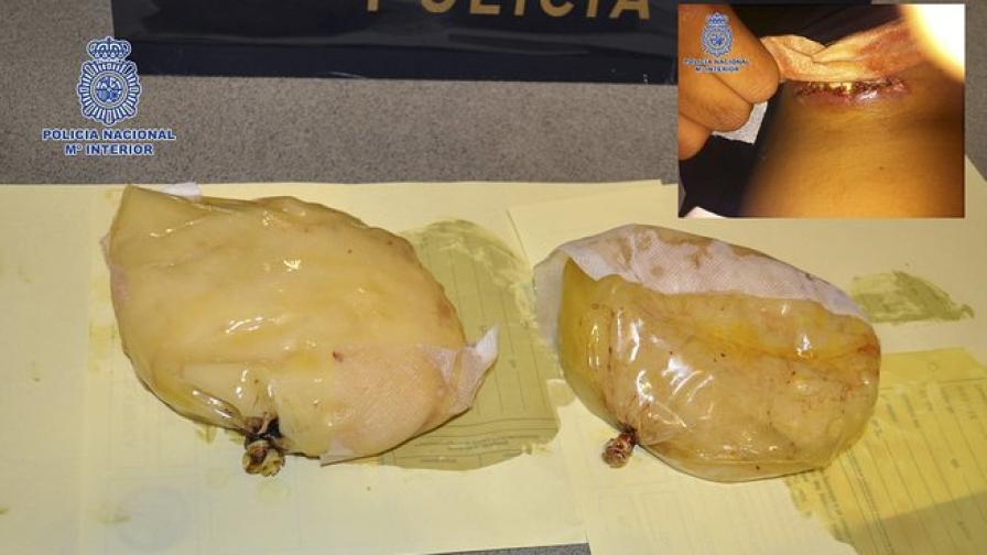 Четири години затвор заради измамата с гръдни импланти